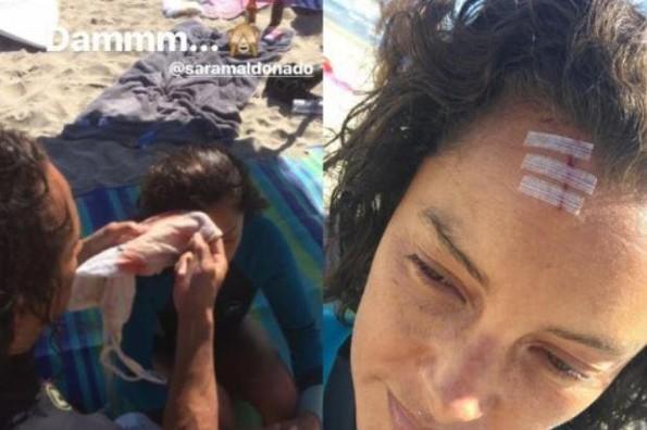 Sara Maldonado sufre accidente durante sus vacaciones (+FOTOS)