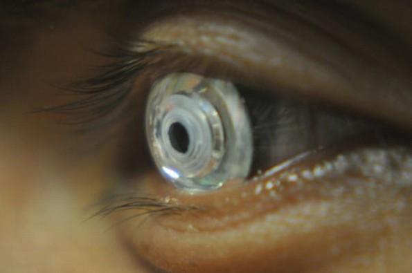 Diseñan lentes de contacto con zoom al pestañear