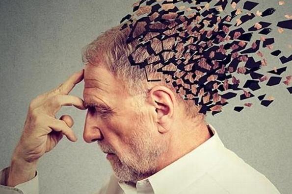 Qué tanto sabes del Alzheimer... Checa los síntomas y cuidados