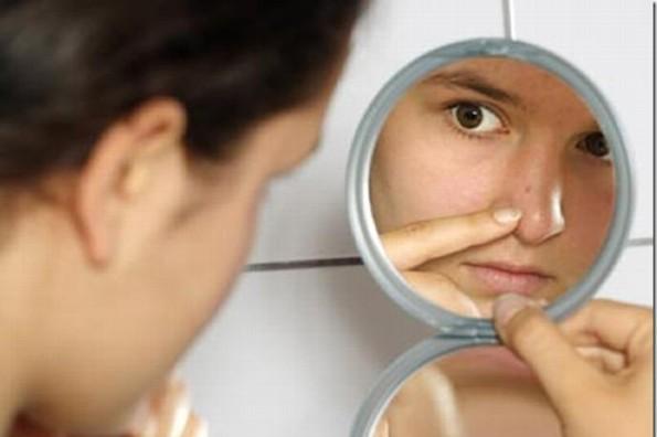 Descubre todo lo que tus espinillas revelan sobre tu salud